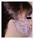顎骨診断ソフト