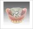 金属床(金属の裏打ちの入れ歯)